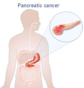 Reduce Your Risk of The (Deadly) Pancreatic Cancer