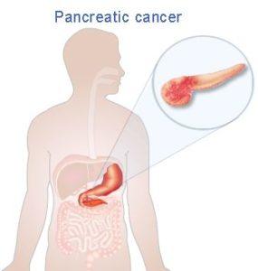 dr-oz-pancreatic-cancer-risks